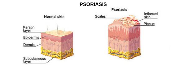 Psoriasis Medical Illustration