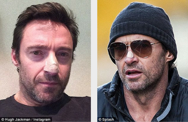 Dominic Purcell Reveals Bandaged Face Following Skin Cancer Scare - Hugh Jackman