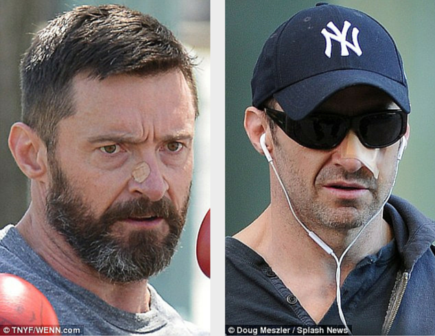 Hugh Jackman Has FIFTH Skin Cancer In Two Years Removed From His Nose