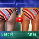 Concealing Cellulite