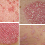 Psoriasis Symptoms And Care