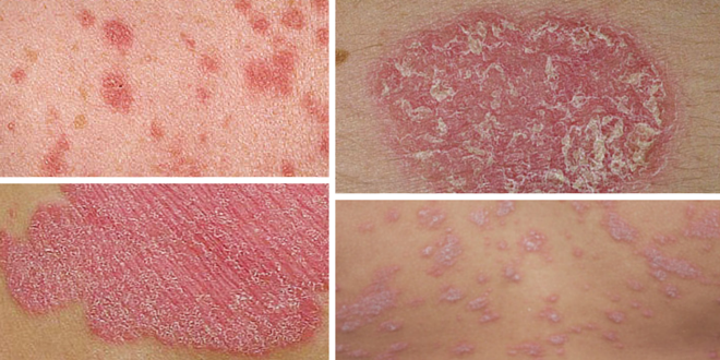 Dry, Itchy And Inflamed Skin? – Psoriasis