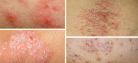 Dry, Itchy And Inflamed Skin? – Eczema