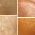 Skin Conditions - Tinea Versicolor